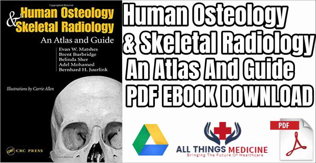 Human Osteology & Skeletal Radiology: An Atlas and Guide: A Photographic Atlas