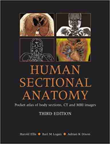 human sectional anatomy