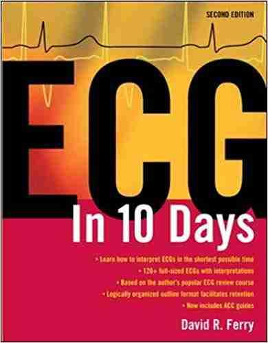 Ecg in 10 days
